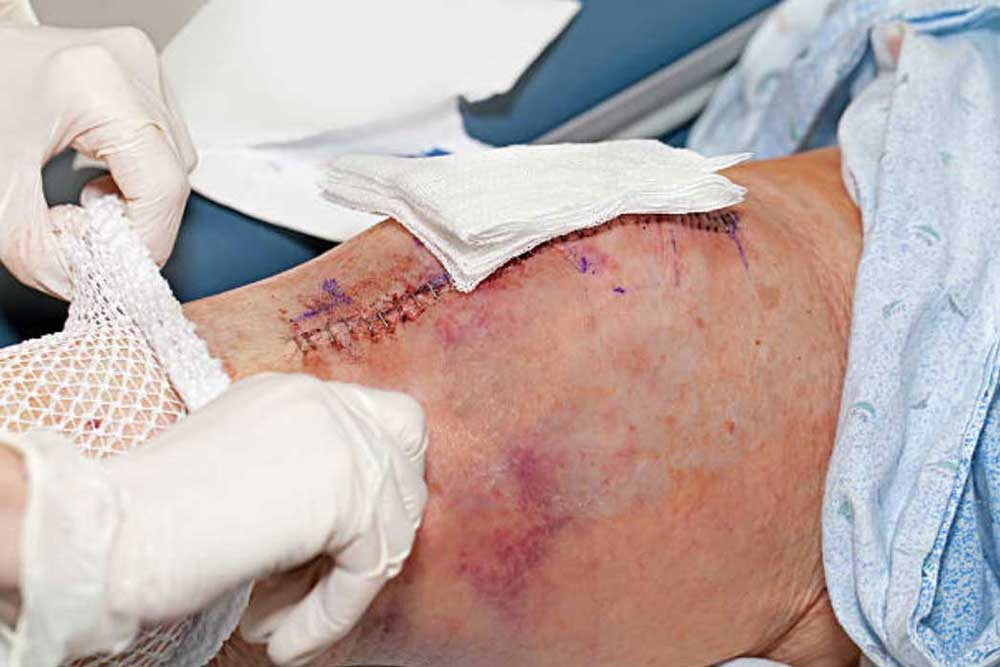 Avoiding knee replacement surger - graphic photo from knee surgery.